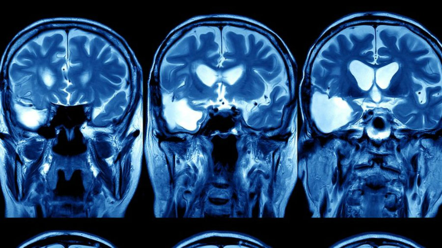 Google's DeepMind division launched its Health initiative earlier this year in an effort to use machine learning for medical purposes. Image Source: BBC