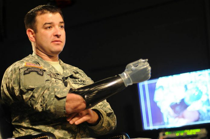 US Army-Medal of Honor Hero with prothesis