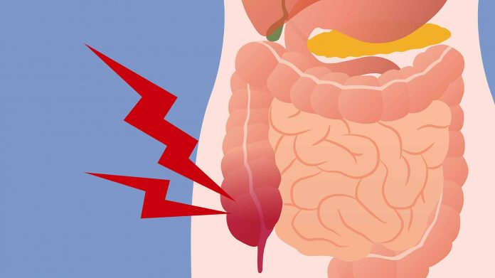 Colon Cancer Symptoms What To Look For