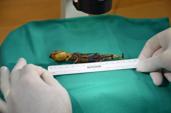 Tiny Atacama skeleton was girl with bone disease