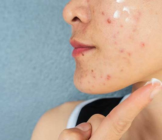 3 Things You Can Do to Reduce Acne Flare-Ups